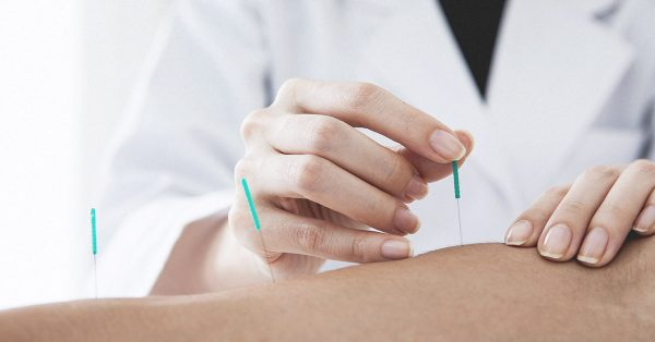 1200x628 FACEBOOK  Dry Needling vs. Acupuncture Which Is Right for You e1542276911221